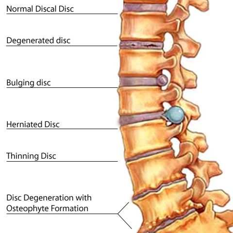 low back pain 01 480x480 - Conditions