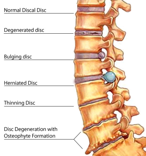low back pain 01 - Disc Disorders